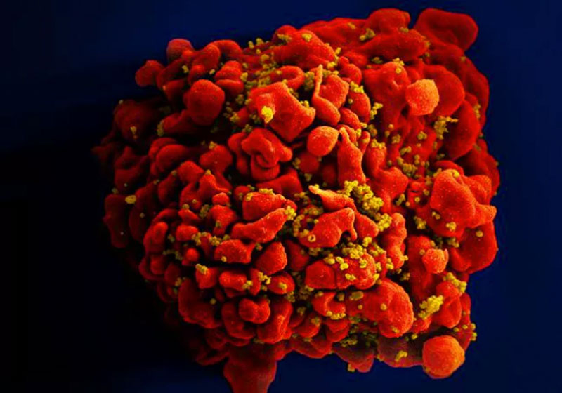 Célula infectada pelo HIV - Foto: National Institute of Allergy and Infectious Diseases