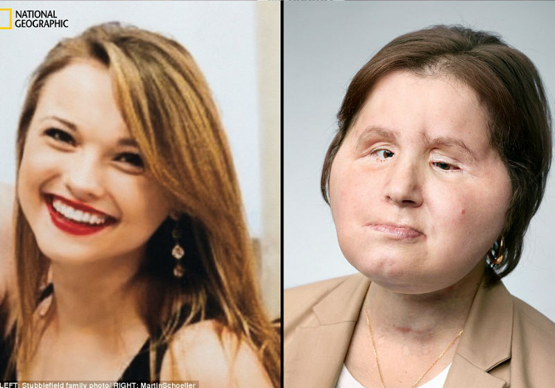 Katie Stubblefield - antes e depois - Foto:National Geographic